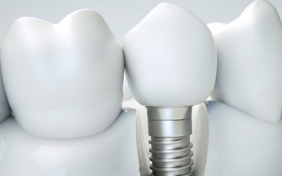 Dental Implant Surgery and Why You Don't Have to Be Worried