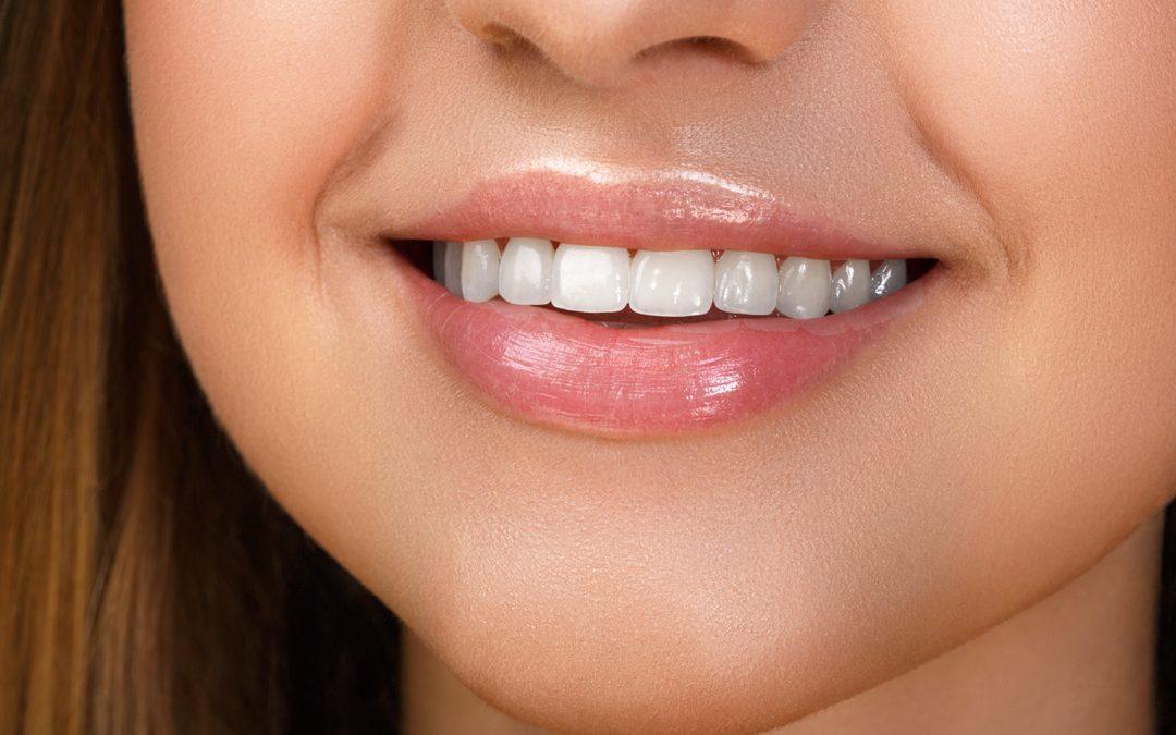 The Health Benefits of Straight Teeth