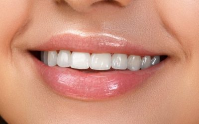 The Health Benefits of Straight Teeth