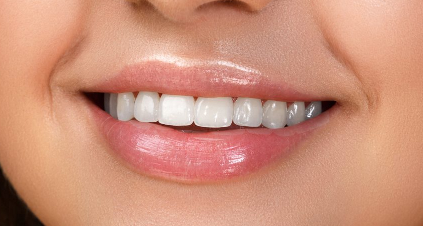 perfect smile veneers на обе челюсти