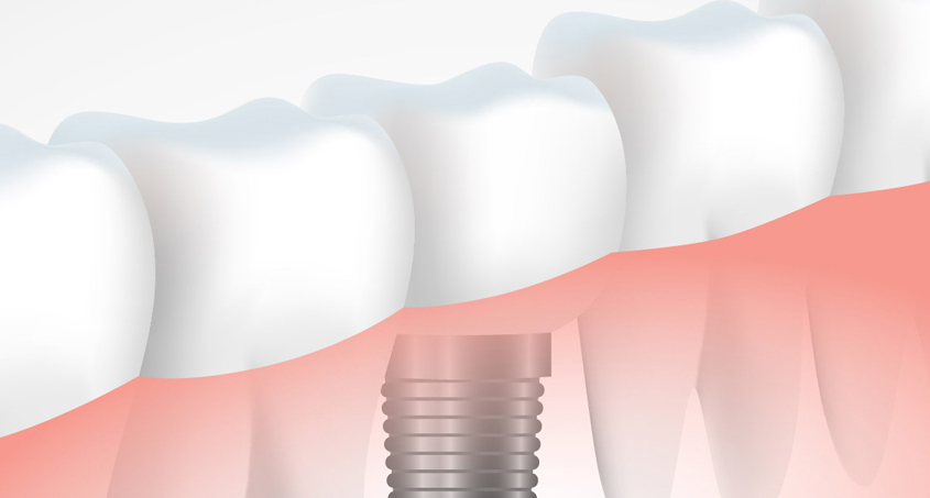 Dental Implant Cost: What Should You Expect?