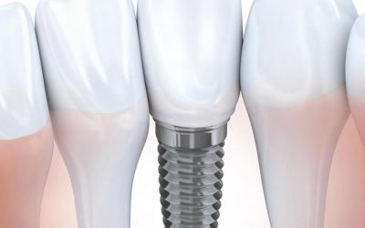 Ensuring Success with Your Dental Implants