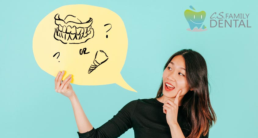Dentures or Dental Implants?