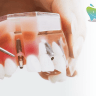 Dental Implants: How Periodontal Disease Affects Them