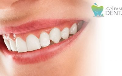 Do You Have Missing Teeth? Here's What You CAN Do